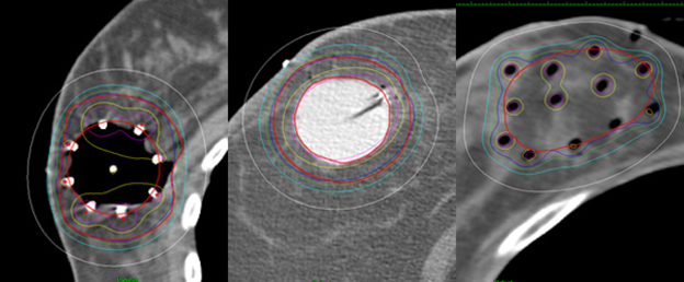 Brachytherapy photo breast