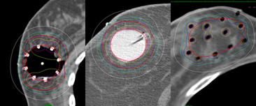 Fig 3. Partial breast brachytherapy (Balloon based and Implant based)
