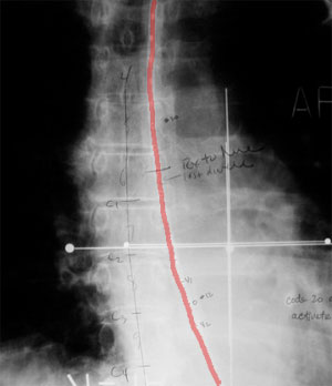 x-ray film showing stent. HDR Brachytherapy for Esophageal and Bile Duct Cancer.  UCLA Radiation Oncology.