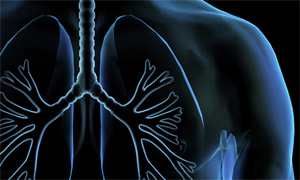 Lung Cancer Treatment in Los Angeles at UCLA