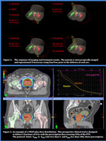 Volumetric Modulated Arc Therapy Treatment Protocol for Hypo-fractionated Stereotactic Body Radiotherapy for Localized Prostate Cancer